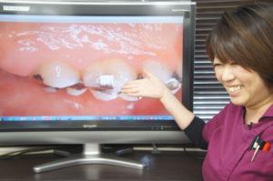 千葉市歯医者 説明を丁寧に行います。